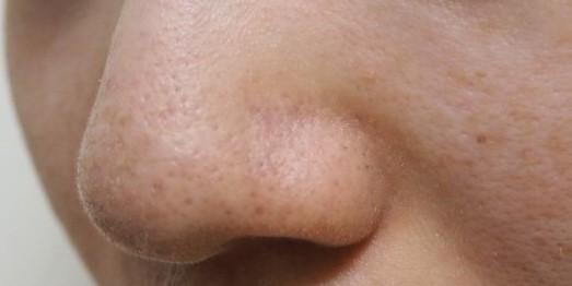 オバジC酵素洗顔パウダーで角質・黒ずみ除去してみたAfter