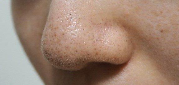 オバジC酵素洗顔パウダーで角質・黒ずみ除去してみたBefore